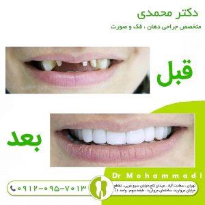 ایمپلنت همه دندان ها