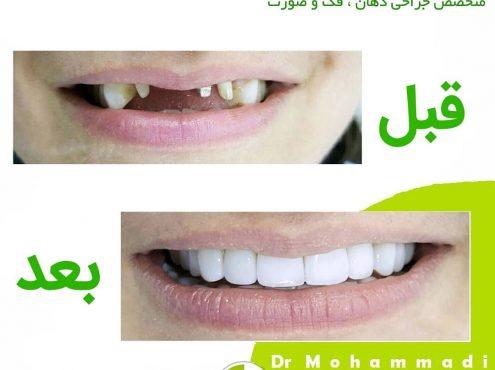 انواع جراحی دندان