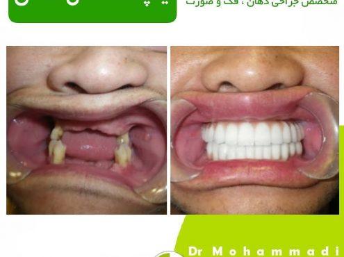 ماندگاری ایمپلنت دندان
