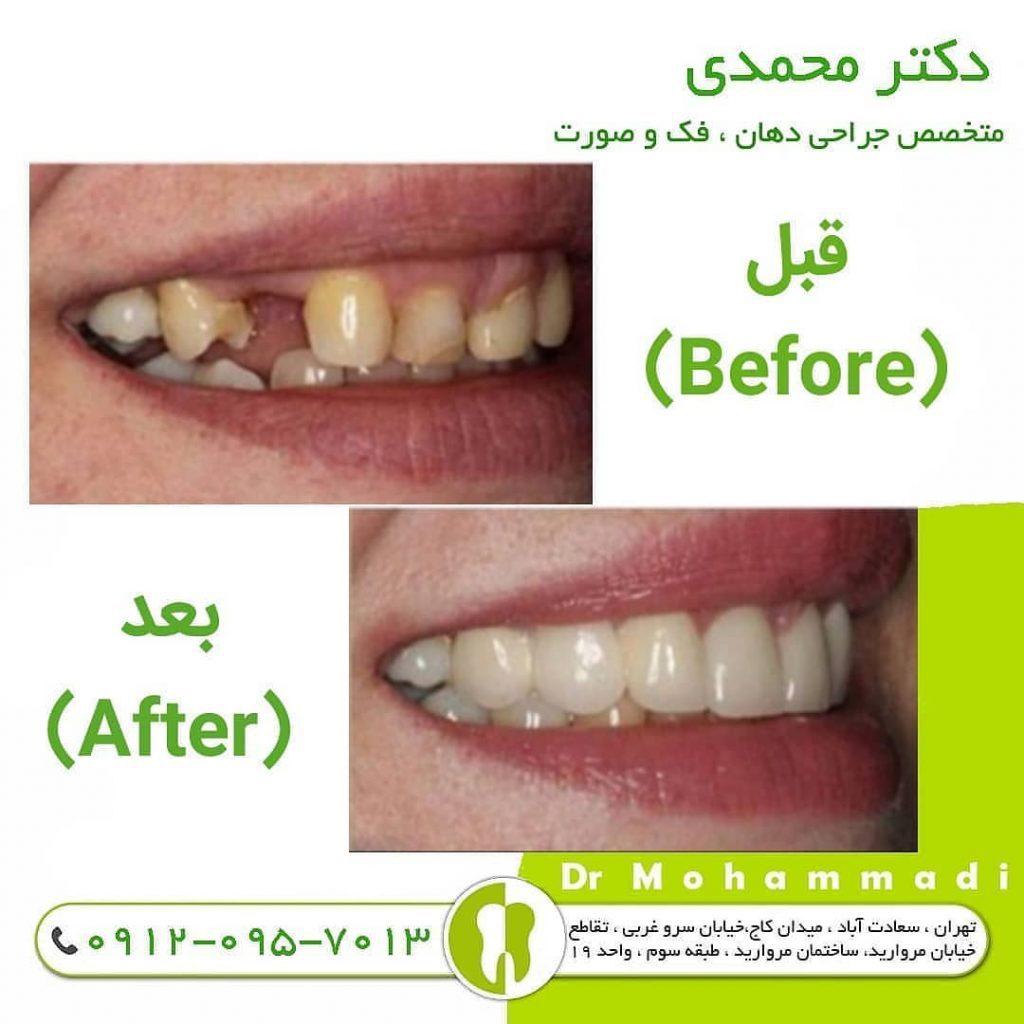 لیفت سینوس در ایمپلنت دندان