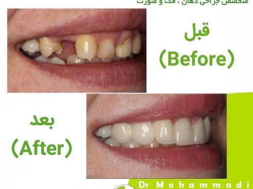 علل پوسیدگی دندان