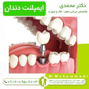 رادیوگرافی ایمپلنت دندان