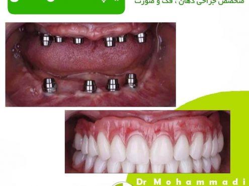 ایمپلنت دکتر امیر محمدی