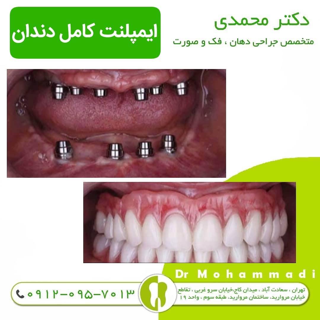 تشخیص پوسیدگی دندان