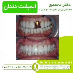 ایمپلنت دندان چقدر زمان میبرد - دکتر امیر محمدی
