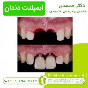 متخصص ایمپلنت دندان کیست ؟