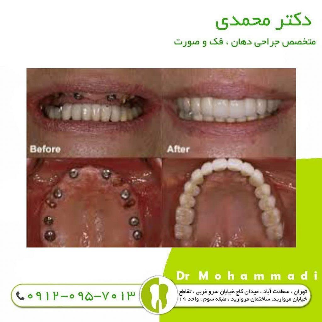 سن مناسب کاشت ایمپلنت دندان