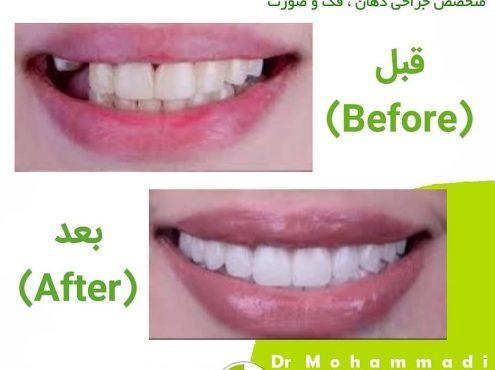 روش های کاشت دندان