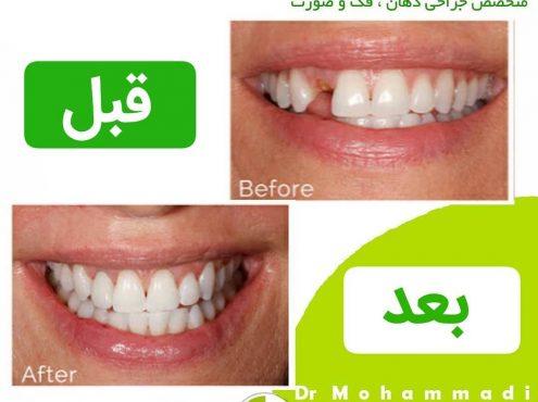 مقایسه ایمپلنت دندان تیتانیومی و زیرکونیا