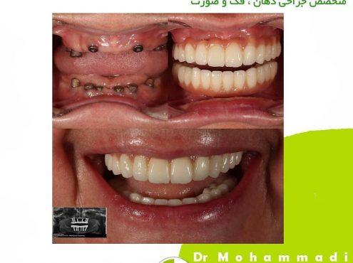 بهترین روش ترمیم دندان