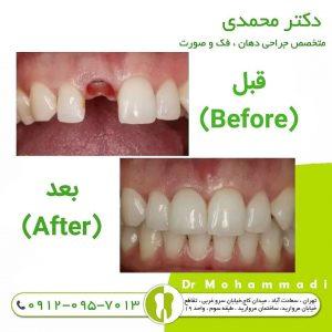 در آودرن ایمپلنت دندان