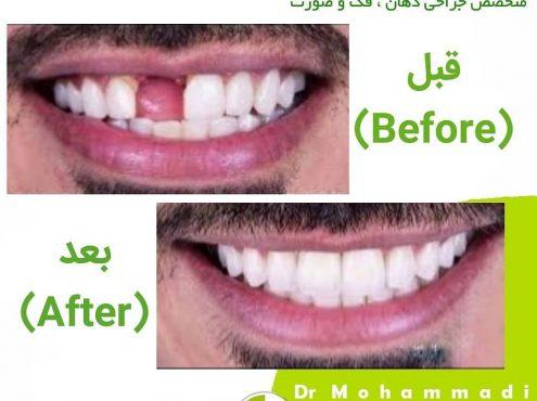 کاشت ایمپلنت دندان چند مرحله دارد؟