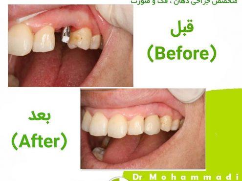 اجزای تشکیل دهنده ایمپلنت دندان