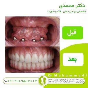 کاشت دندان (ایمپلنت دندان) دکتر امیر محمدی