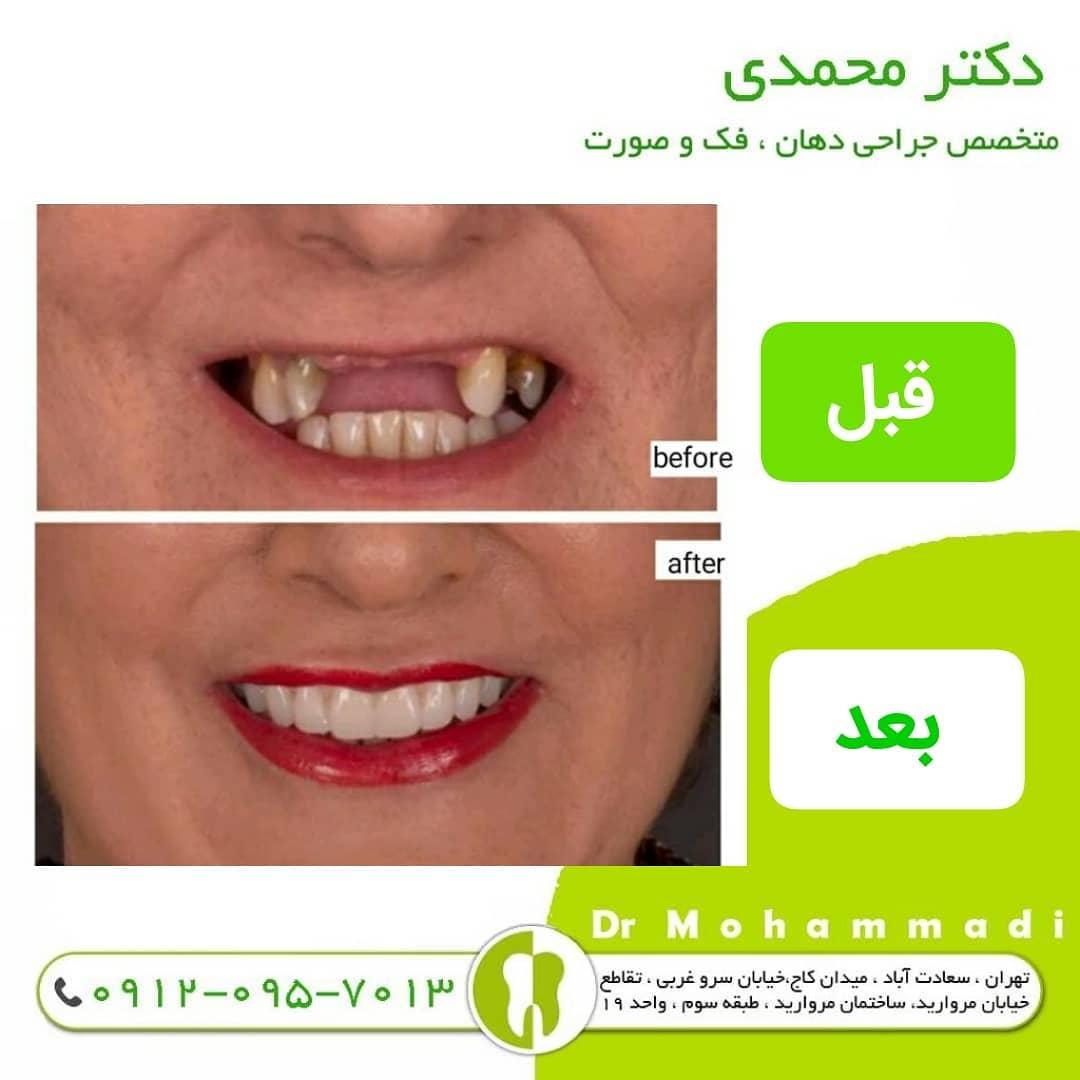 علائم و درمان عفونت ایمپلنت دندان چیست ؟